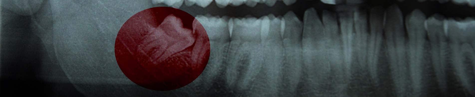 Wisdom Teeth - dental care