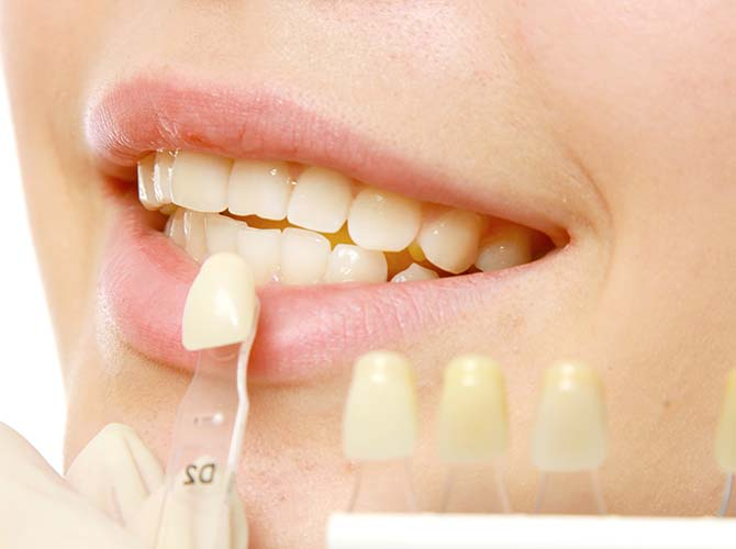 restorative dental treatments