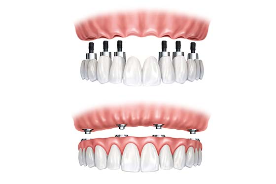 dental implants dental care