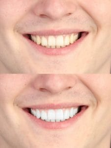 Teeth Whitening in Burwood