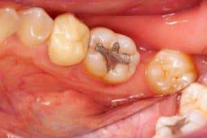 amalgam filling falls out Burwood dentist appointment